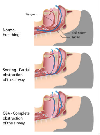 sleep apnea is a dangerous condition that can usually be identified by  snoring and/or choking or gasping for air during sleep  since signs of the  disease
